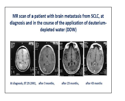 Pre-Clinical and Clinical Data Confirm the Anticancer Effect of Deuterium Depletion